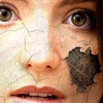 crack and peel skin